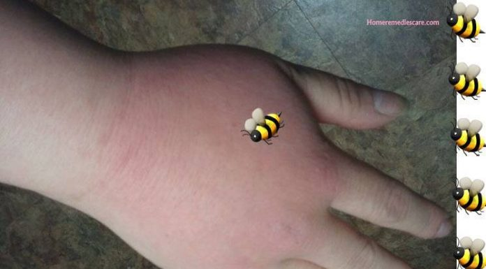 Home Remedies for Bee Sting that Really Work