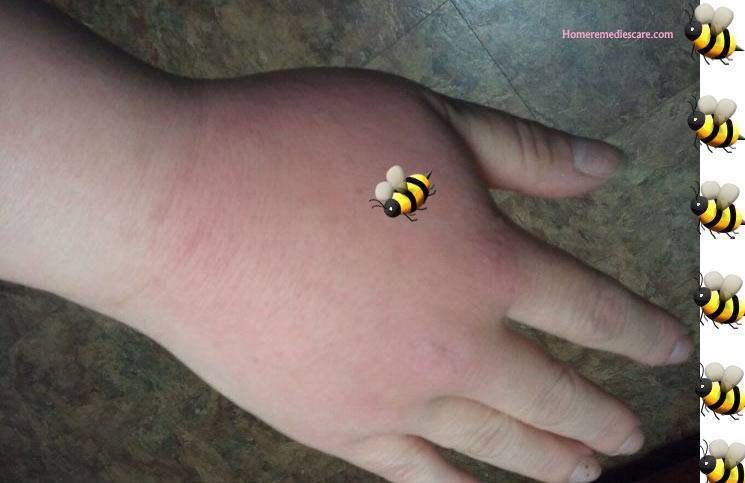 How to Treat a Wasp or Hornet Sting: 10 Steps (with Pictures)