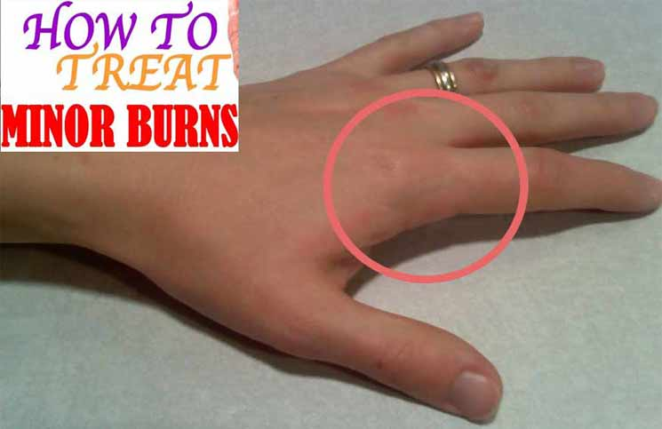 how to take care of burns at home