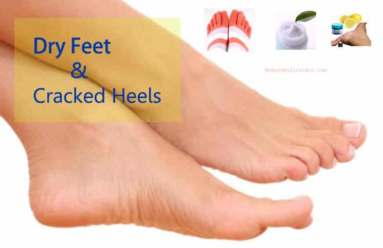 how to get rid of cracked heels youtube