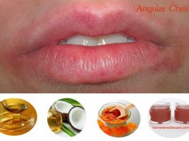 Home Remedies to Treat Angular Cheilitis