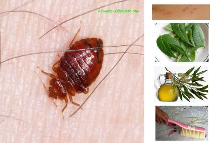 insect & pet remedy