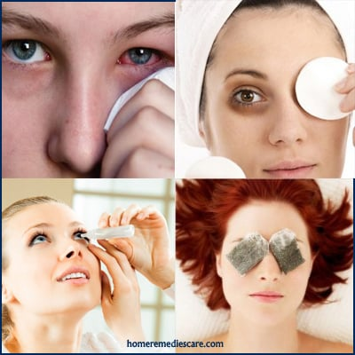 Home Remedies to Get Rid of Pink Eye