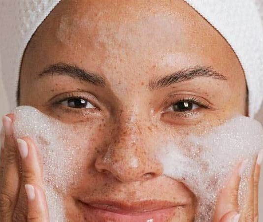 Home Remedies to Get Rid of Freckles