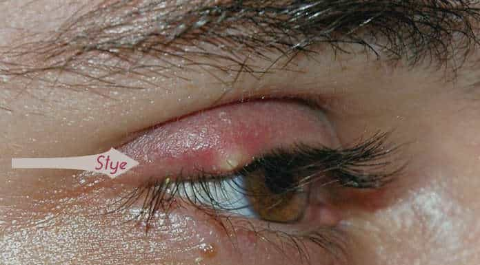 Safe Home Remedies to Get Rid of Stye
