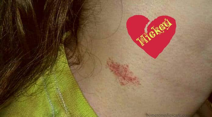 Home Remedies to Get Rid of a Hickey Mark