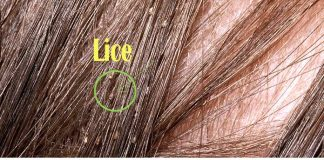 Home Remedies to Getting Rid Of Head Lice