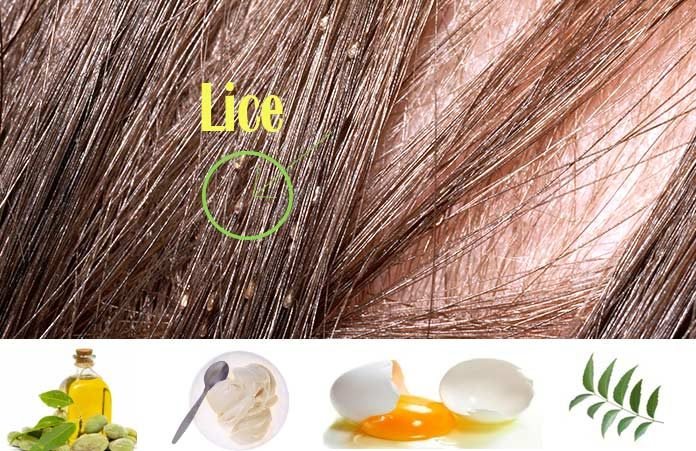 22 home remedies to getting rid of head lice: a secret battle, now, Skeleton