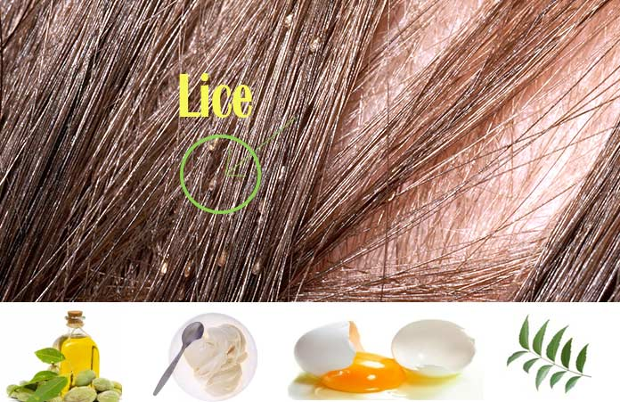 Effective Home Remedies For Lice