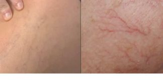 20 Effective Home Remedies to Get Rid of Spider Veins