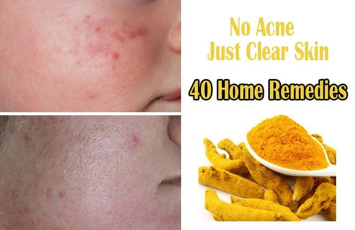 40 Easy Home Remedies to Get Rid of Acne