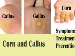 15 Natural Home Remedies to Get Rid of Calluses