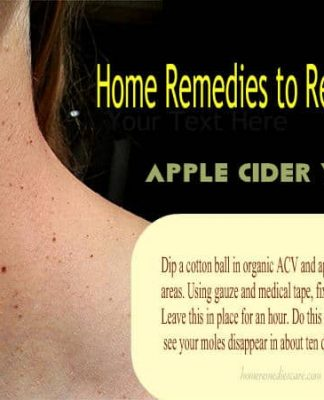 Home Remedies to Remove Moles