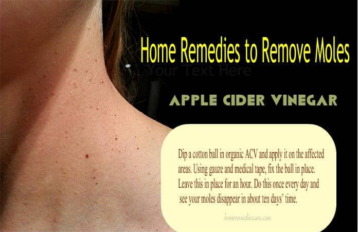 16 Natural Home Remedies For Safely Moles Remove On Face
