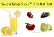 Treating Kidney Stones with the Right Diet