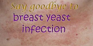 Home Remedies to Get Rid of Yeast Infection Under Breast