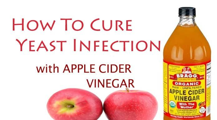 How To Use Apple Cider Vinegar For Yeast Infection Cure
