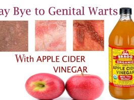 How to Get Rid of Genital Warts Fast with Apple Cider Vinegar