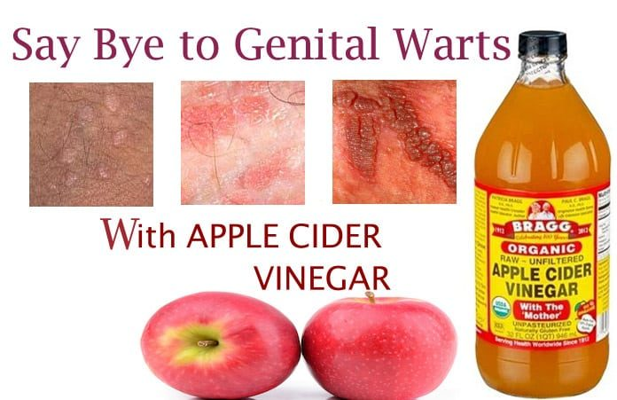 vinegar and vagina