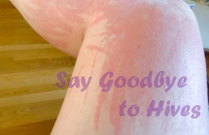 Home Remedies to Get Rid of Hives Fast