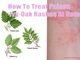 home remedies to cure poison-ivy-oak-surmac rashes