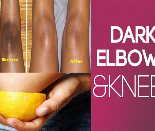 Home Remedies to Get Rid of Dark Elbows and Knees Fast