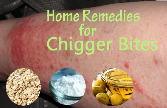 21 Best Home Remedies To Get Rid Of Chigger Bites Soon