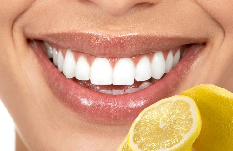 18 Most Effective Home Remedies For Teeth Whitening