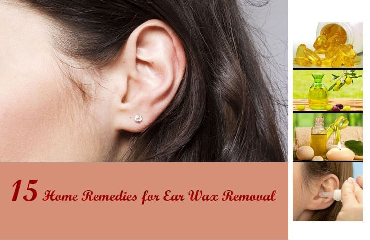 How To Get Rid Of Ear Wax Blockage Naturally