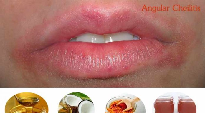 Home Remedies to Treat Angular Cheilitis