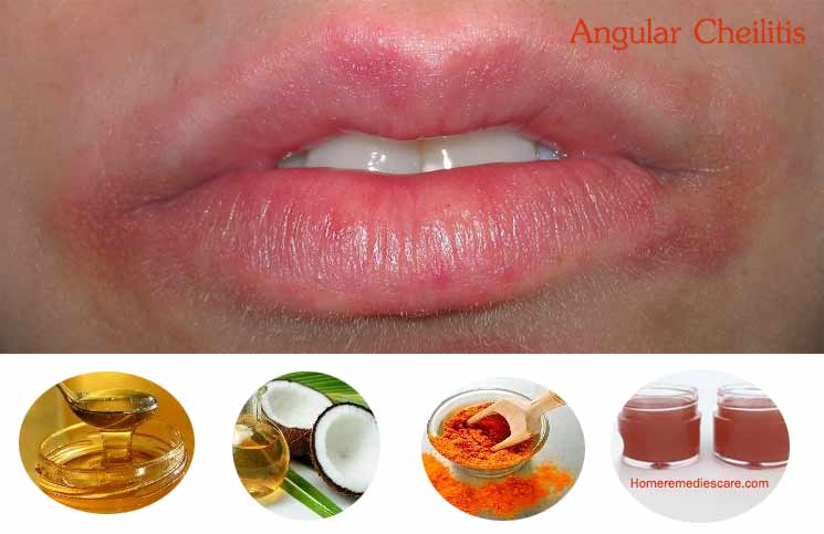 Treat Angular Cheilitis Naturally