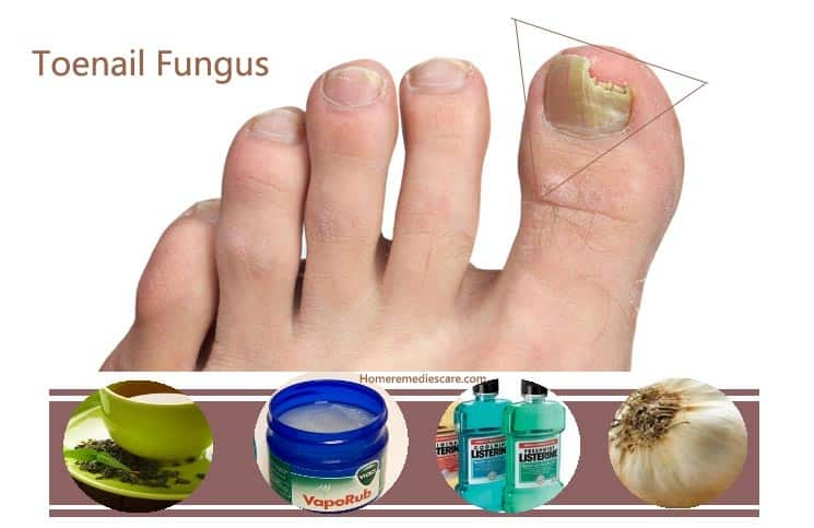 Home Remedies Natural Cure For Foot Fungus