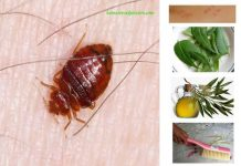Home Remedies for Dismiss Bedbugs Forever