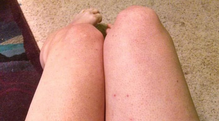 15 Tried and Tested Home Remedies to Get Rid of Razor Bumps Fast
