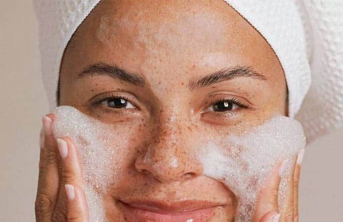 How To Get Rid Of Freckles Naturally And Quickly