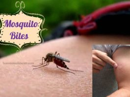 Home Remedies to Get Rid of Mosquito Bites