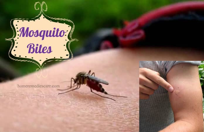 20 Home Remedies to Get Rid of Mosquito Bites from Itching