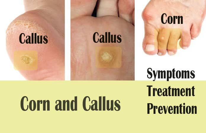 15 Natural Home Remedies To Get Rid Of Calluses And Corns On Feet
