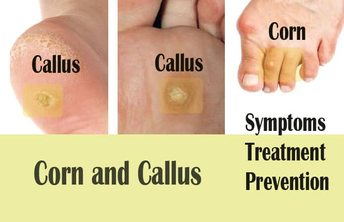 Corns And Calluses Natural Remedies