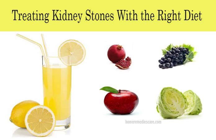 Natural Remedy For Calcium Kidney Stones