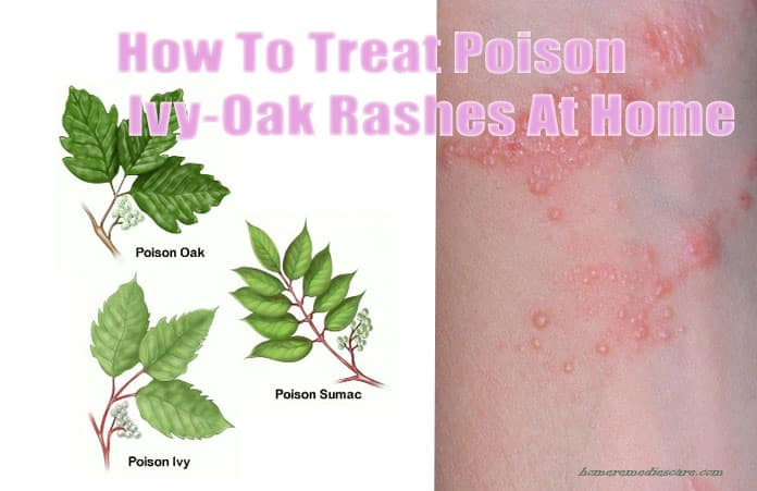 15 Reliable Home Remedies To Get Rid Of Poison Ivy Oak Sumac Rashes