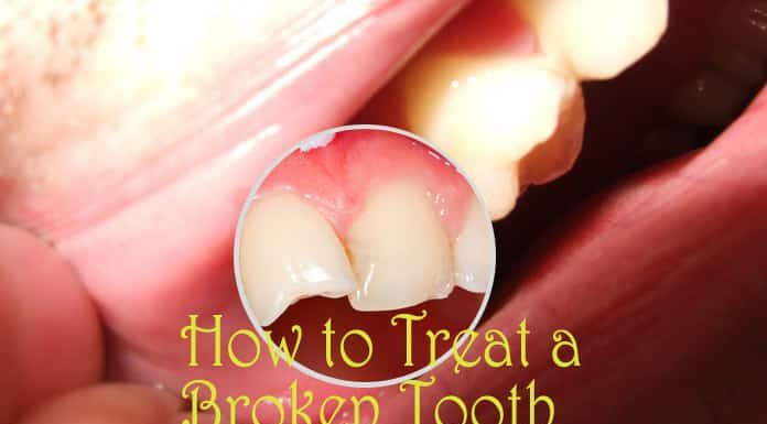 Home Remedies for Broken Tooth - Relieve The Pain Soon