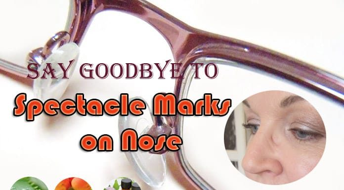 Home Remedies to Remove Spectacle Marks on Nose Bridge Fast