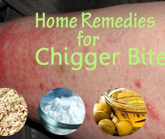 Home Remedies to Get Rid of Chigger Bites