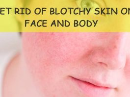 Home Remedies To Get Rid Of Blotchy Skin